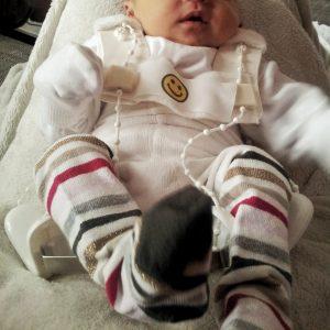 Hüfte Baby Hüftdysplasie Hüftscreening