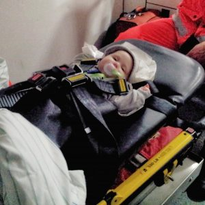 Spreizkinderautositz, Hüftdysplasie Baby