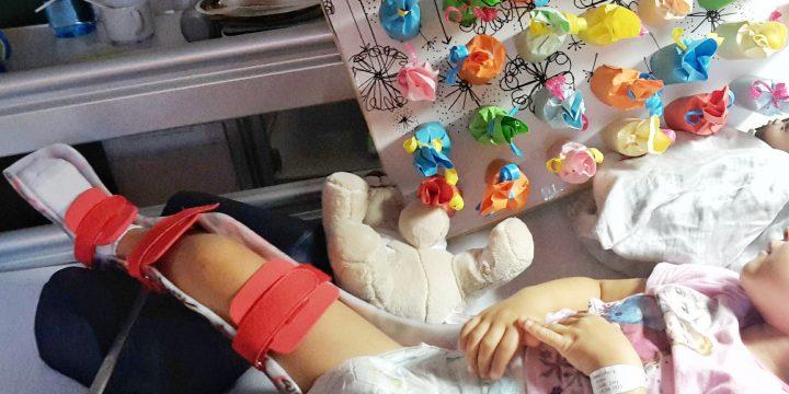 (17) Diagnose Hüftreluxation – Schmerzen nach der OP